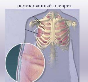 Сухой плеврит – лечение при диагнозе