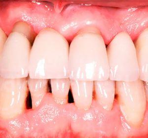 Пародонтоз — лечение в домашних условиях зубными пастами, травами и аппликациями
