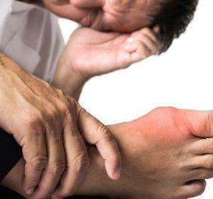 Симптомы подагры у мужчин — диагностика и первые признаки проявления заболевания