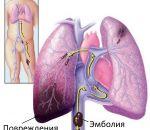 Тромбоэмболия лёгочной артерии — причины, симптомы, лечение