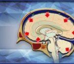 Внутричерепная гипертензия: причины, симптомы, лечение