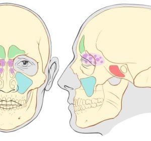 Верхнечелюстной синусит — что это такое, как лечить болезнь
