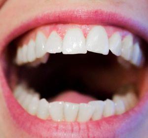 Трещины на зубах: что это, что делать, как лечить трещина на эмали
