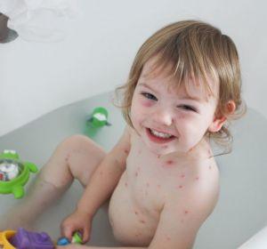 Купание при ветрянке: можно ли купать ребенка, когда можно купаться, Комаровский