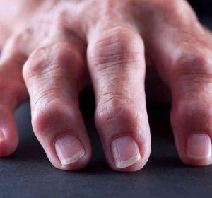 Народные средства от артрита пальцев рук — мази, отвары, настойки, ванночки и компрессы