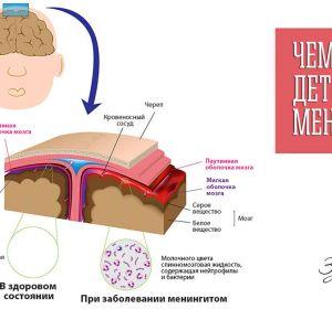 Прививка от менингита — это профилактика опасной менингококковой инфекции