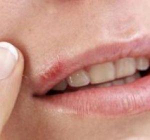 Средство от герпеса на губе: народные рецепты и препараты для лечения
