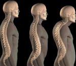 Подвывих атланта: виды, причины, симптомы и лечение