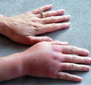 Перелом пястных костей в кисти: сколько заживает, лечение