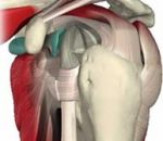Боль в плечевом суставе: причины и лечение, что делать