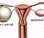 Киста желтого тела яичника при беременности — причины возникновения и лечение образования