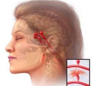 Что такое аневризма головного мозга и опасна ли она?