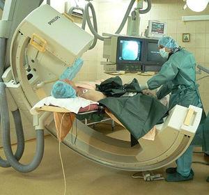 Коронарография в исследовании патологии сердечно-сосудистой системы