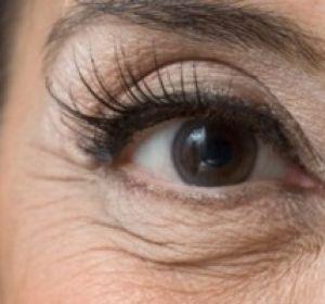 Как эффективно бороться с морщинами под глазами