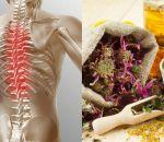 Лечение шейного остеохондроза медикаментозными и народными методами