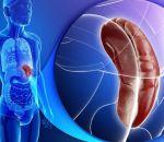 Альдостеронизм: формы, причины, симптомы и лечение
