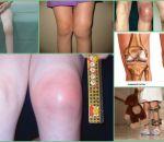 Синовит коленного сустава: причины, симптомы, лечение