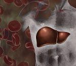 Реактивный гепатит: что это, причины, симптомы, лечение