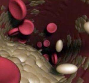 Лечение атеросклероза: основные принципы и современные тенденции