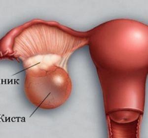 Диагностика и лечение фолликулярной кисты яичников