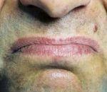 Металлический привкус во рту и на языке — что означает признак