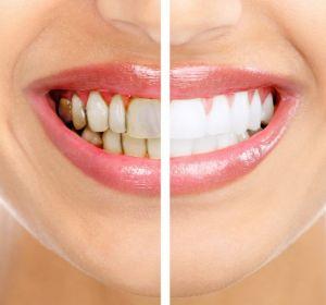 Камни на зубах: как удалить и от чего образовываются