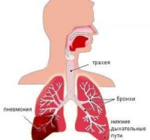 Пневмония у детей — причины развития и симптоматика