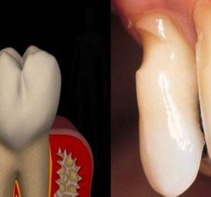 Клиновидный дефект зубов: что это, симптомы, причины и лечение