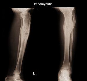 Абсцесс мягких тканей конечностей: симптомы, лечение в домашних условиях