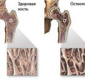 Как диагностировать и лечить диффузный остеопороз?