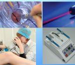 Лейкоплакия — классификация, симптомы, терапия медикаментами и народными средствами, профилактика