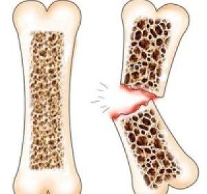 Остеопороз: как его лечить, чтобы не стать инвалидом