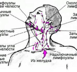 Воспаление лимфоузлов: причины, симптомы и лечение