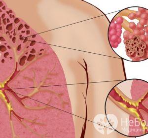 Рецидивирующий обструктивный бронхит — симптомы, причины и лечение для взрослого и ребенка