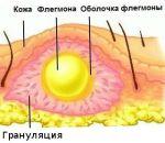 Флегмона — виды, причины, симптомы (+фото) и лечение