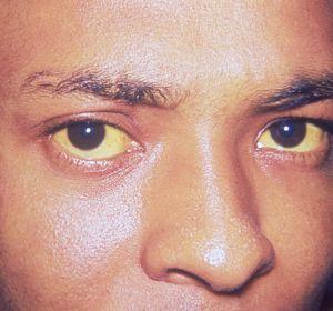 Болезнь (синдром) Жильбера — симптомы и лечение