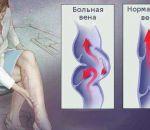 Венозная недостаточность: причины, симптомы, лечение