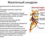 Артроз дугоотросчатых суставов поясничного отдела позвоночника — симптомы и лечение