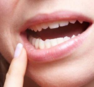 Стоматит — причины, симптомы, эффективное лечение