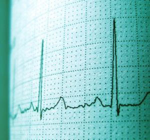 Пациент перенес полтора часа сердечно-легочной реанимации в сознании. Но потом все равно умер
