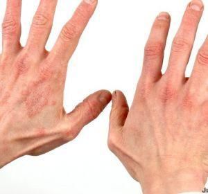 Мазь от экземы на руках — какие применять при разных формах болезни