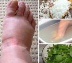 Народные средства от отеков — как лечить в домашних условиях травяными ванночками, примочками и настоями