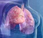 Симптомы развития периферического рака легких у людей