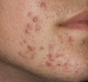 Как спасти свою кожу: простая и эффективная болтушка