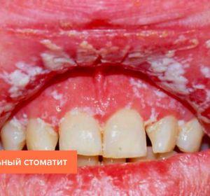 Грибковый стоматит — первые признаки и формы, лечение медикаментами и рецепты народной медецины