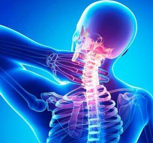Как лечить головокружение при шейном остеохондрозе в домашних условиях