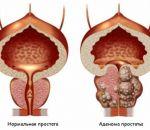 Последствия цистита — осложненные формы и распространение на другие органы