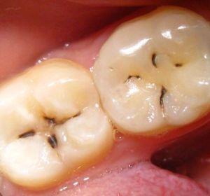 Как развивается кариес зубов. Основные способы лечения кариеса зубов