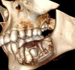 Киста верхнечелюстной пазухи — виды и признаки, медикаментозная и хирургическая терапия