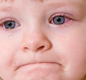 Аденовирусный конъюнктивит у детей — проявления болезни, диагностика, способы терапии